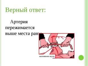 Верный ответ: Артерия пережимается выше места раны