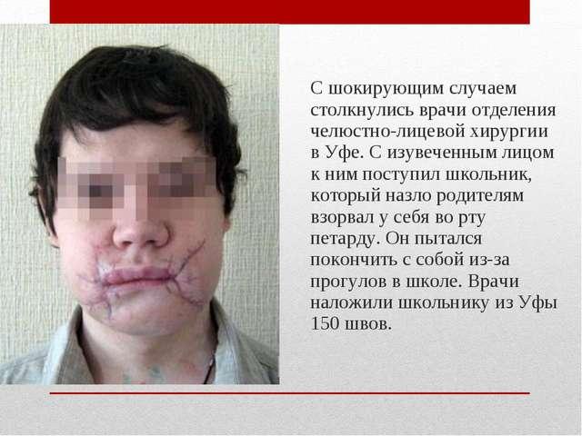 С шокирующим случаем столкнулись врачи отделения челюстно-лицевой хирургии в...