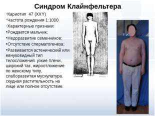 Синдром Клайнфельтера Кариотип 47 (ХХY) Частота рождения 1:1000 Характерные п