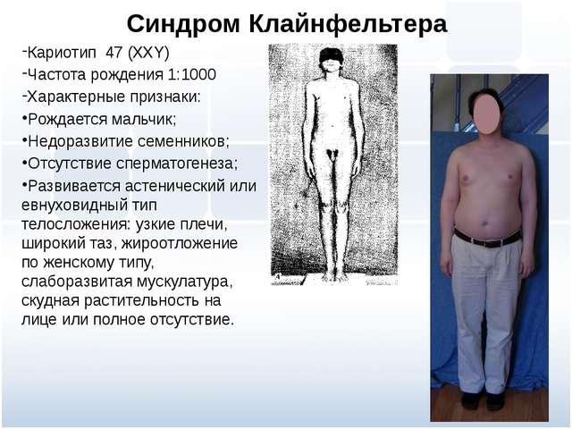 Синдром Клайнфельтера Кариотип 47 (ХХY) Частота рождения 1:1000 Характерные п...