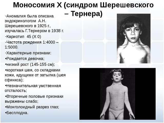 Моносомия Х (синдром Шерешевского – Тернера) Аномалия была описана эндокринол...