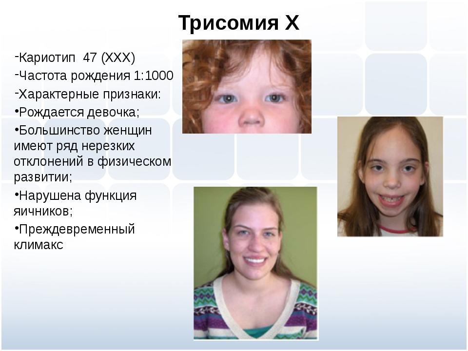 Трисомия Х Кариотип 47 (ХХХ) Частота рождения 1:1000 Характерные признаки: Ро...