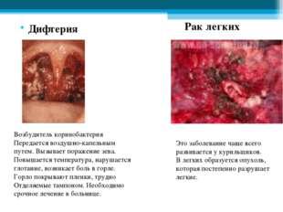 Дифтерия Возбудитель коринобактерия Передается воздушно-капельным путем. Выз