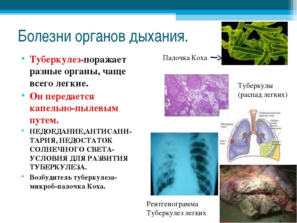 Болезни органов дыхания. Туберкулез-поражает разные органы, чаще всего легкие...
