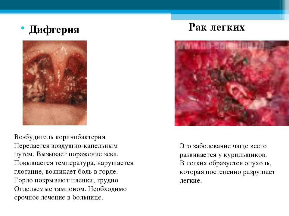 Дифтерия Возбудитель коринобактерия Передается воздушно-капельным путем. Выз...