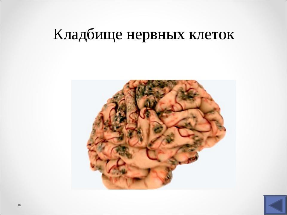 Кладбище нервных клеток
