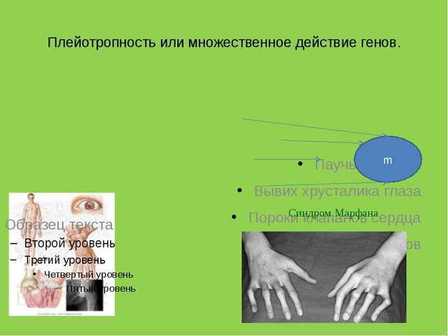 Плейотропность или множественное действие генов. Паучьи пальцы Вывих хрустали...
