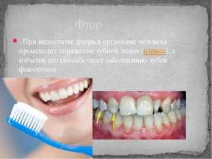 . При недостатке фтора в организме человека происходит поражение зубной ткани