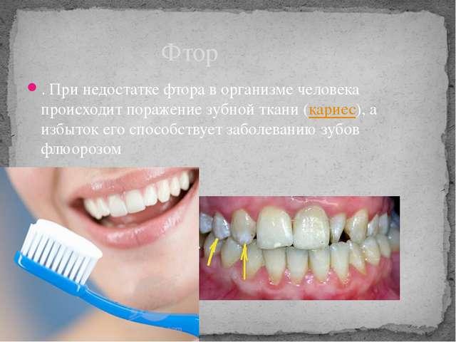. При недостатке фтора в организме человека происходит поражение зубной ткани...