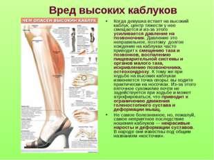 Вред высоких каблуков Когда девушка встает на высокий каблук, центр тяжести у