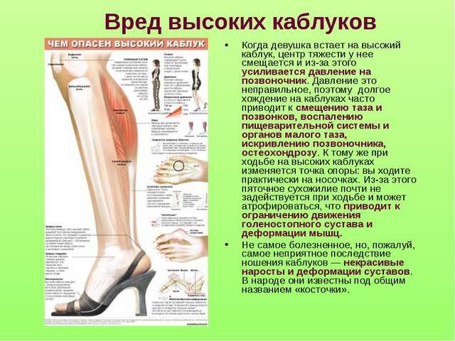 Вред высоких каблуков Когда девушка встает на высокий каблук, центр тяжести у...