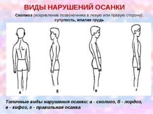 ВИДЫ НАРУШЕНИЙ ОСАНКИ Сколиоз (искривление позвоночника в левую или правую ст