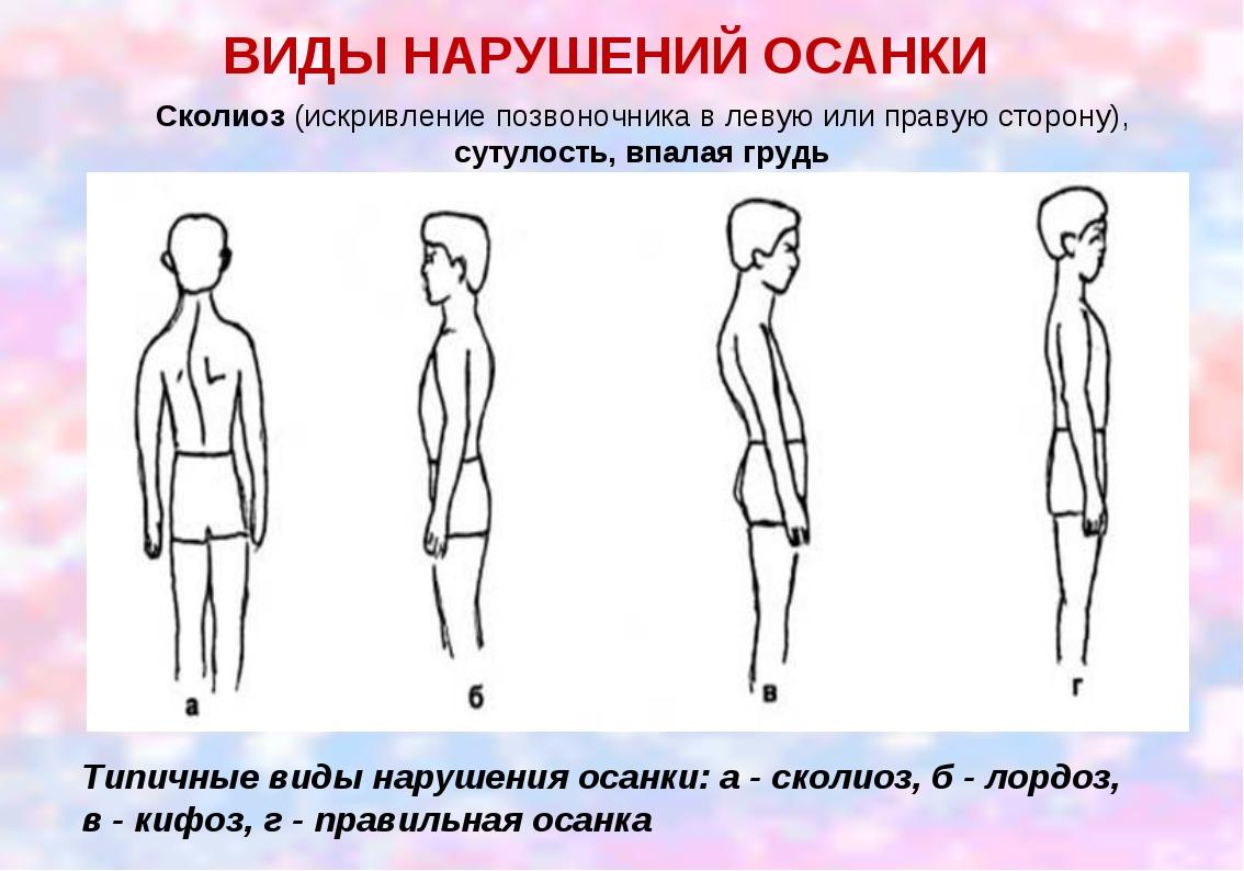 ВИДЫ НАРУШЕНИЙ ОСАНКИ Сколиоз (искривление позвоночника в левую или правую ст...