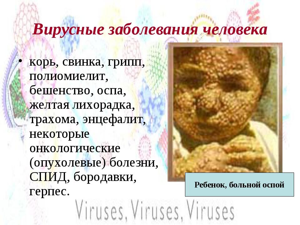 Вирусные заболевания человека корь, свинка, грипп, полиомиелит, бешенство, ос...