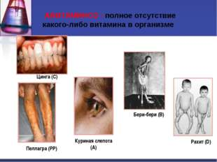 АВИТАМИНОЗ - полное отсутствие какого-либо витамина в организме Цинга (С) Ра
