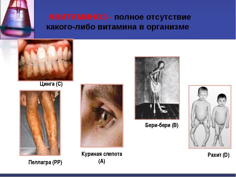 АВИТАМИНОЗ - полное отсутствие какого-либо витамина в организме Цинга (С) Ра...