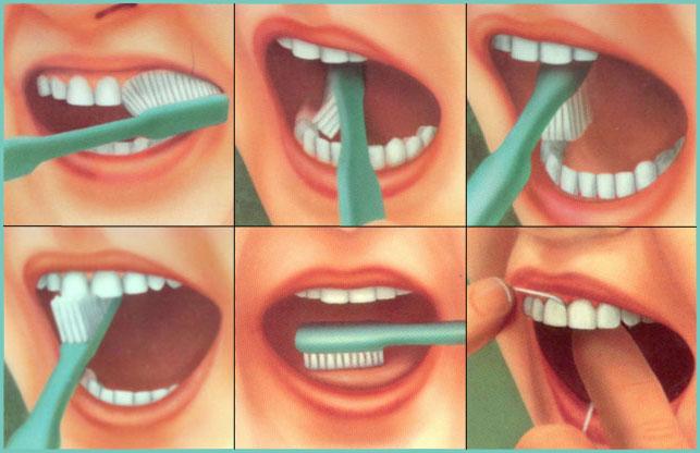 плакат чистка зубов
