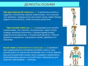 ДЕФЕКТЫ ОСАНКИ При кругловогнутой спине (рис.1. 4) увеличены изгибы в грудно