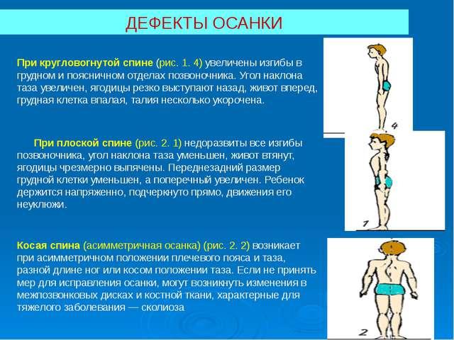 ДЕФЕКТЫ ОСАНКИ При кругловогнутой спине (рис.1. 4) увеличены изгибы в грудно...