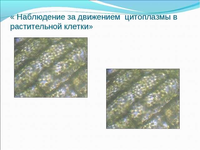 « Наблюдение за движением цитоплазмы в растительной клетки»
