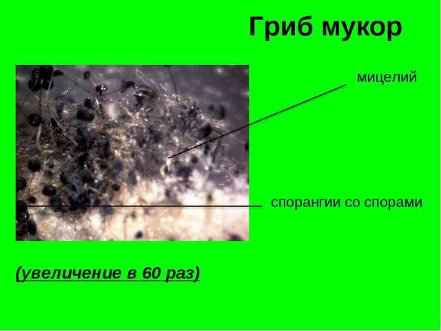 Гриб мукор мицелий спорангии со спорами (увеличение в 60 раз)