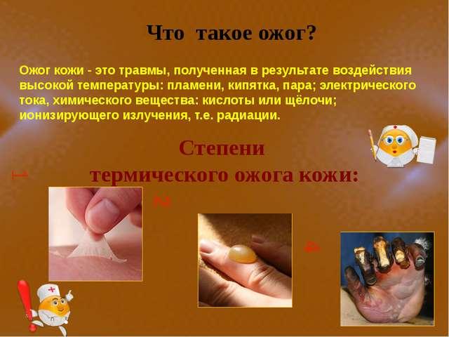 Ожог кожи - это травмы, полученная в результате воздействия высокой температ...