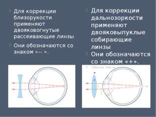 Для коррекции близорукости применяют двояковогнутые рассеивающие линзы Они об