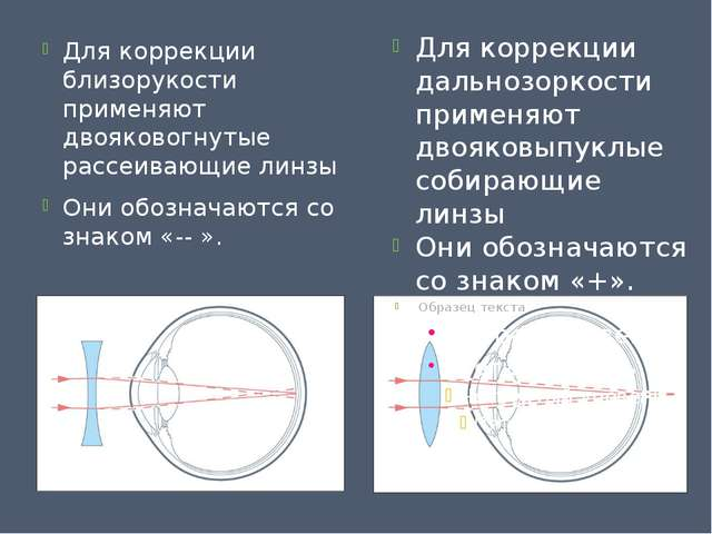 Для коррекции близорукости применяют двояковогнутые рассеивающие линзы Они об...
