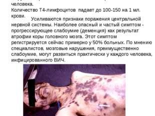 БОЛЬНОЙ с развившейся кожной раковой опухолью «САРКОМОЙ КАПОШИ» на последней