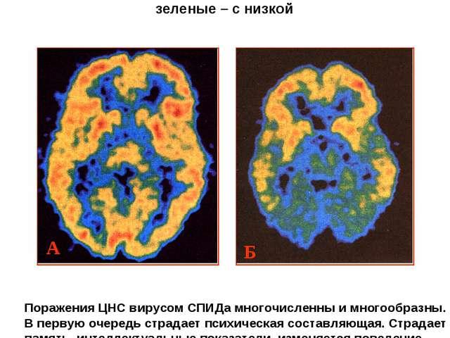 Изображения головного мозга здорового человека (А) и человека с выраженным сл...