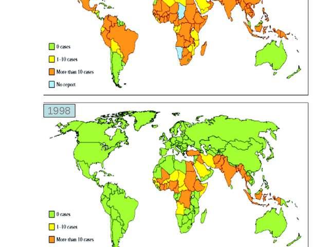 Карта распространения заболеванием полиомиелитом до (вверху) и после (внизу)...