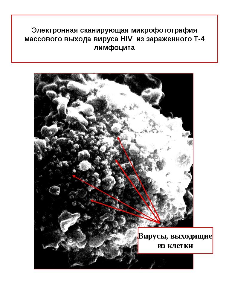 Электронная сканирующая микрофотография массового выхода вируса HIV из зараже...