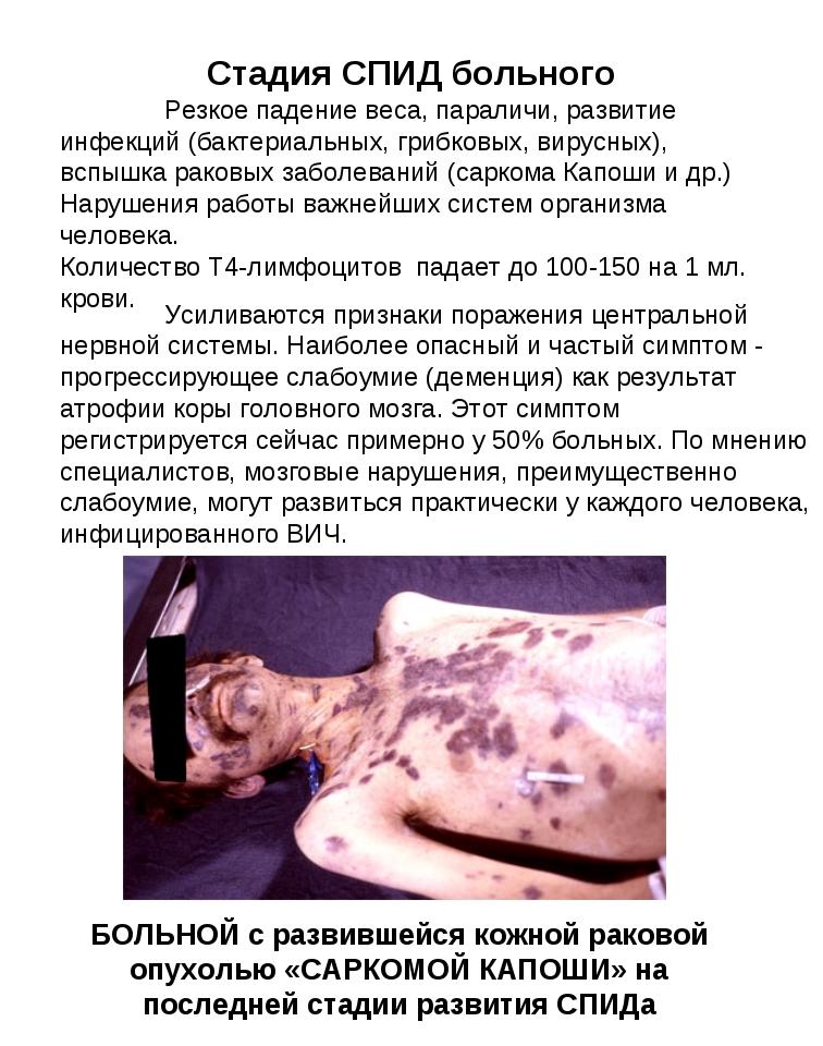 БОЛЬНОЙ с развившейся кожной раковой опухолью «САРКОМОЙ КАПОШИ» на последней...