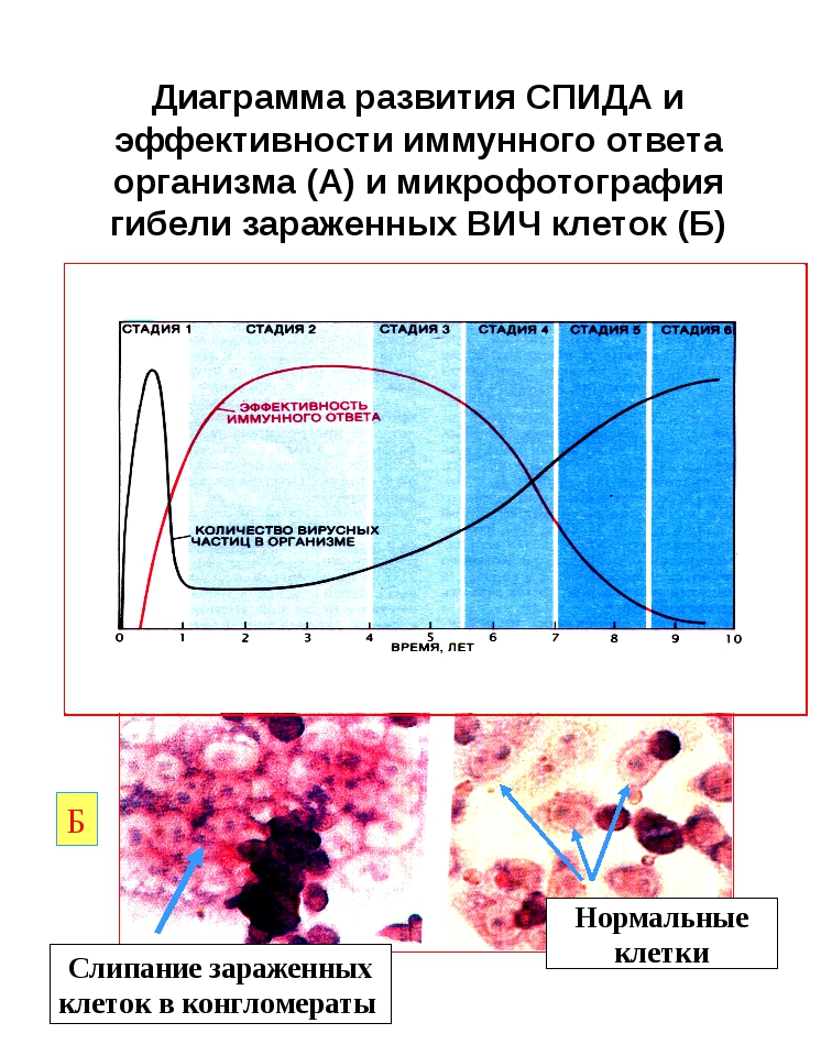 Диаграмма развития СПИДА и эффективности иммунного ответа организма (А) и мик...