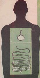 Рис. 7. Взрослый паразит в теле человека