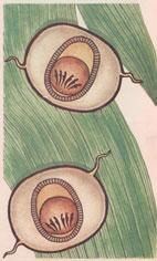 Рис. 6. Циста