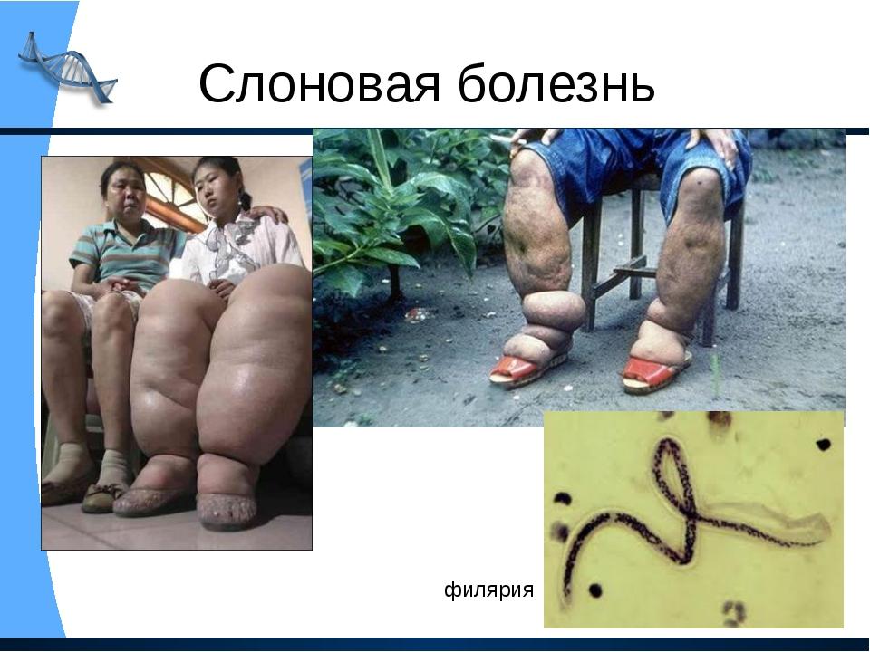 Слоновая болезнь филярия