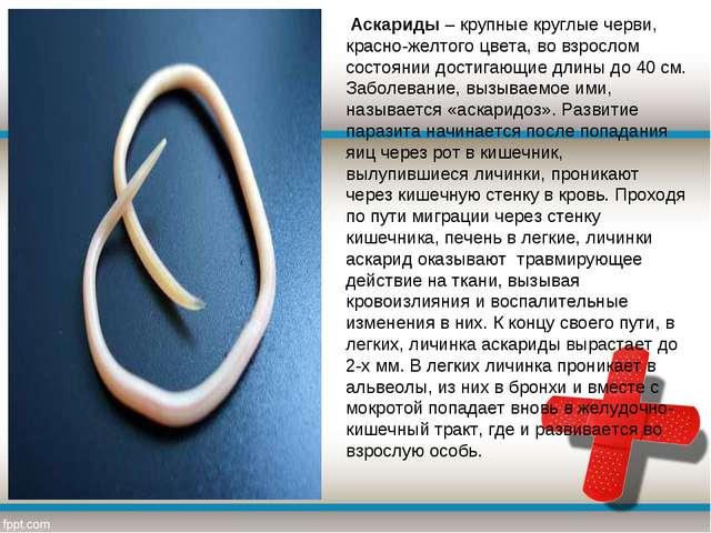 Аскариды– крупные круглые черви, красно-желтого цвета, во взрослом состояни...