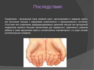 Последствия: Синдактилия – врожденный порок развития кисти, заключающийся в с