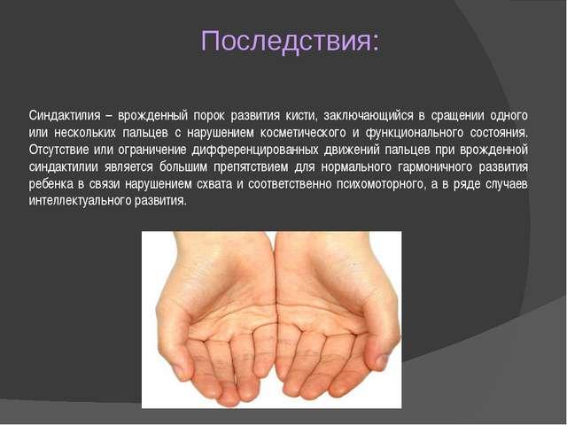 Последствия: Синдактилия – врожденный порок развития кисти, заключающийся в с...