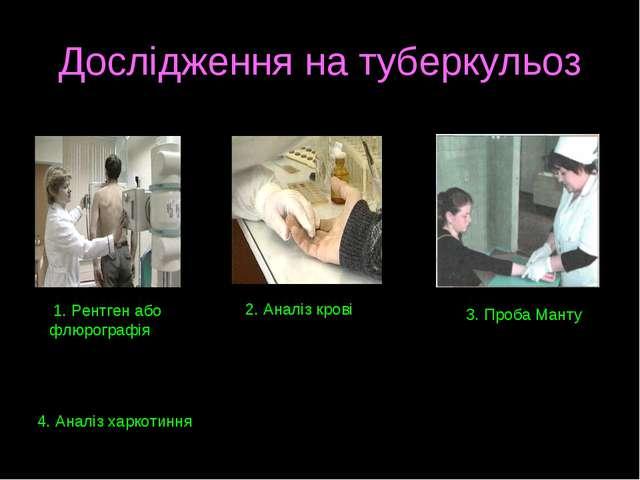 Дослідження на туберкульоз 1. Рентген або флюрографія 2. Аналіз крові 3. Проб...