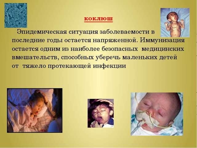 коклюш Эпидемическая ситуация заболеваемости в последние годы остается напряж...