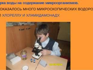 7.Проверка воды на содержание микроорганизмов. В ВОДЕ ОКАЗАЛОСЬ МНОГО МИКРОСК