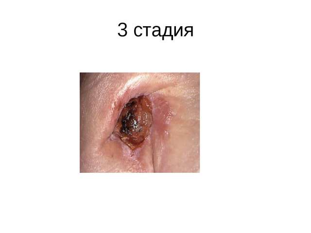 3 стадия