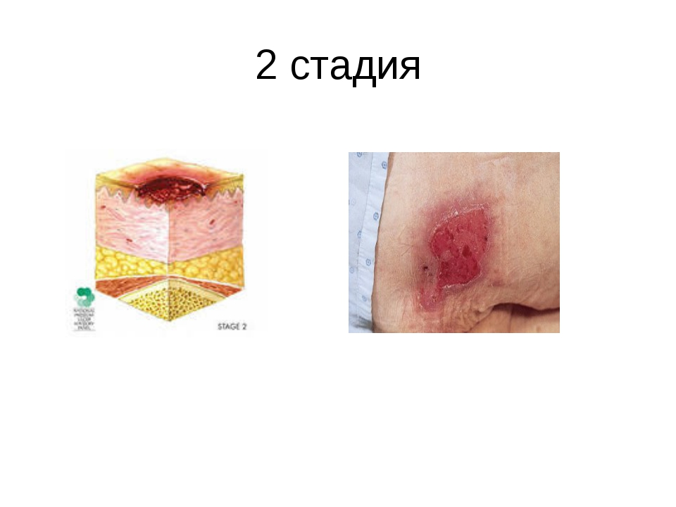 2 стадия