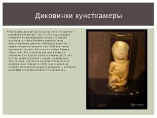 Некоторые доводят до уродства тело, но другие с рождения необычны. Так, в 179