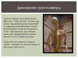 Диковинки кунсткамеры Один из главных экспонатов Музея Мюттера - Гарии Истлак