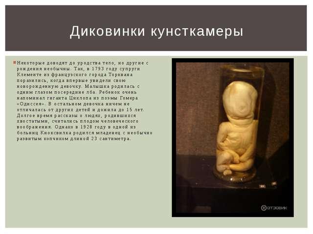 Некоторые доводят до уродства тело, но другие с рождения необычны. Так, в 179...