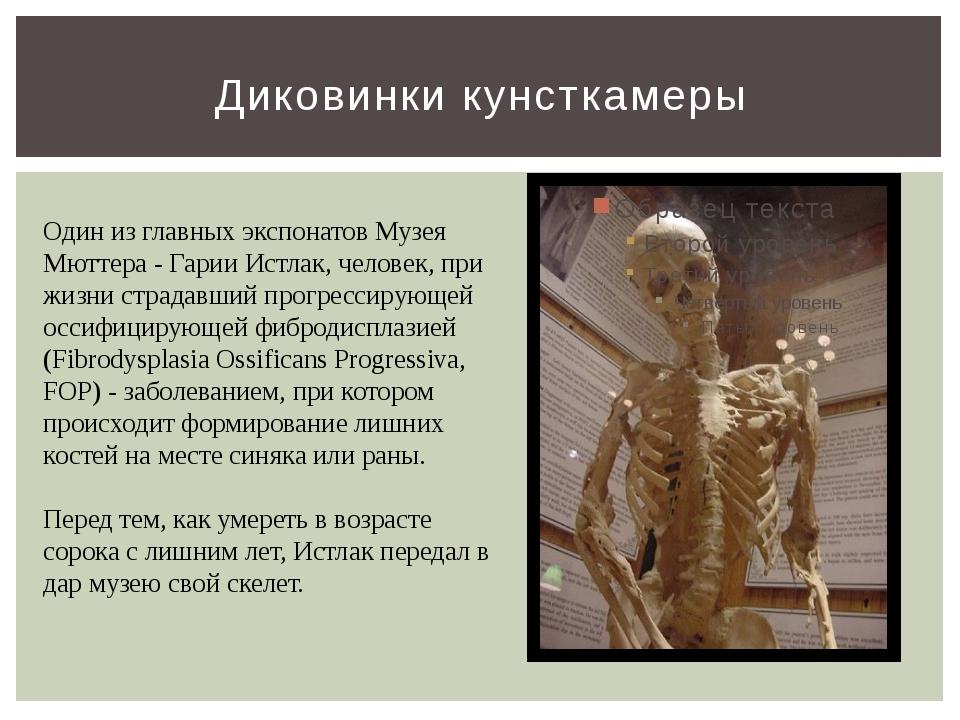 Диковинки кунсткамеры Один из главных экспонатов Музея Мюттера - Гарии Истлак...