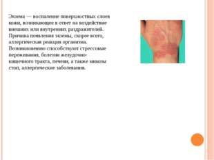 Экзема — воспаление поверхностных слоев кожи, возникающее в ответ на воздейст